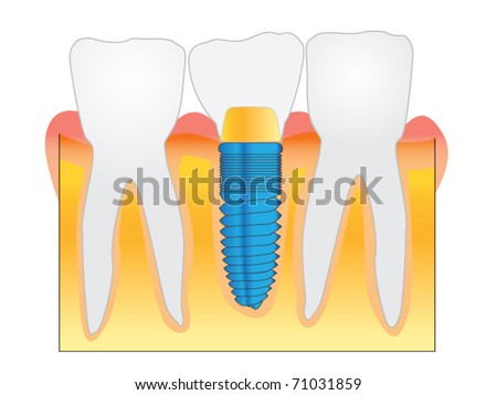 Dental Implant detailed view. Vector. Illustration.