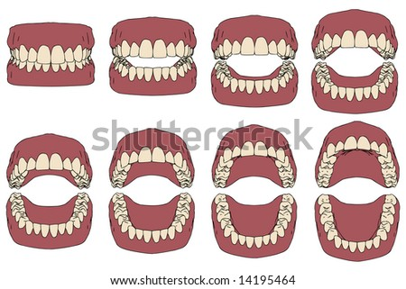 dental prosthesis, vector illustration - stock vector