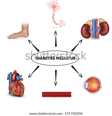 Diabetes mellitus affected areas. Diabetes affects nerves, kidneys, eyes, vessels, heart and skin. - stock vector