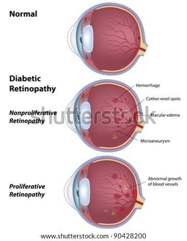 Diabetic retinopathy - disease of the eye as a result of diabetes - stock vector