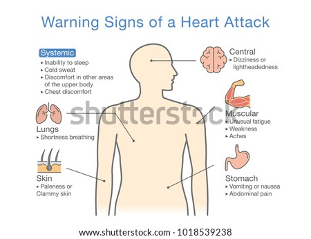 Diagram About Warning Signs Heart Attack Stock Vector 2018