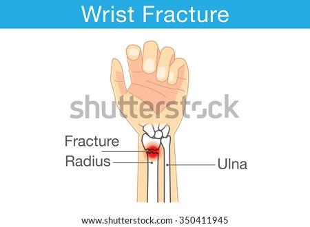 Diagram Wrist Have Bone Fracture Stock Vector 350411945 Shutterstock