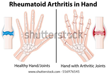 Diagram Showing Rheumatoid Arthritis Hand Illustration Stock Vector