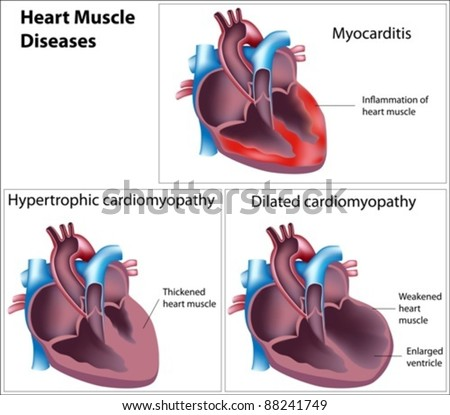 Diseases of heart muscle - stock vector