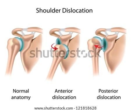 dislocated shoulder stock vector 121818628 shutterstock rh shutterstock com dislocated shoulder diagram Dislocated Shoulder Brace for Women