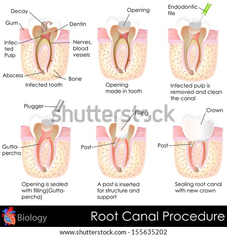 easy to edit vector illustration of root canal procedure of tooth - stock vector