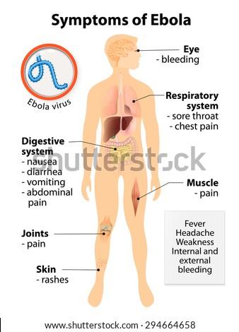 ebola virus disease signs symptoms human stock vector 294664658, Muscles