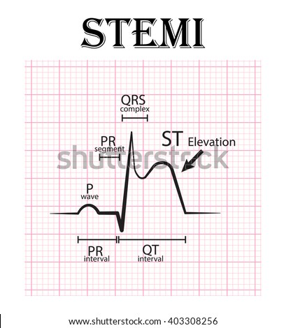 ECG of ST elevation myocardial infarction ( STEMI ) and detail of ECG ( P wave , PR segment , PR interval , QRS complex , QT interval , ST elevate , T wave )  Acute coronary syndrome , angina pectoris - stock vector