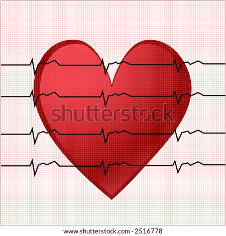 ekg with smaller square chart behind vector - stock vector