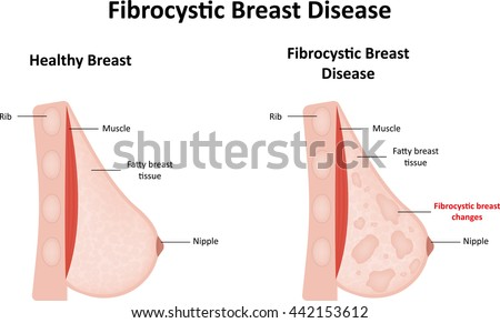 breast diagram labels stock illustration 442153630 - shutterstock, Skeleton
