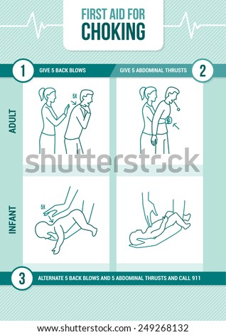 First aid procedure for choking and heimlich maneuver for adults and infants - stock vector