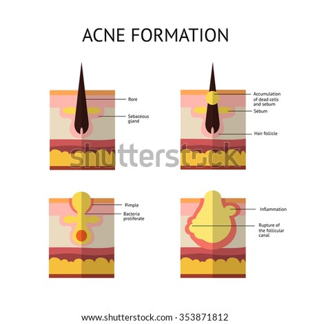 Formation of skin acne or pimple.  - stock vector
