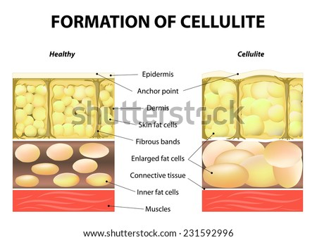 forming of cellulite. Human anatomy. Vector illustration - stock vector