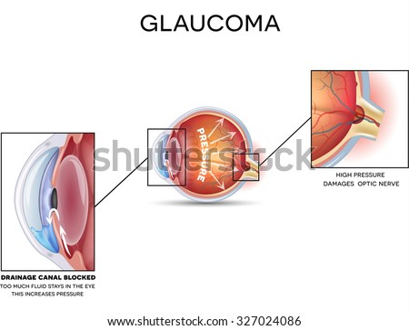 Glaucoma and healthy eye detailed structure on a white background