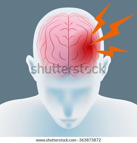 headache, cerebral hemorrhage, brain stroke, image illustration - stock vector