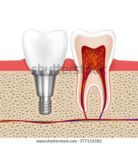 Healthy teeth and dental implant. Implant tooth, health tooth medical dentistry, vector illustration - stock vector