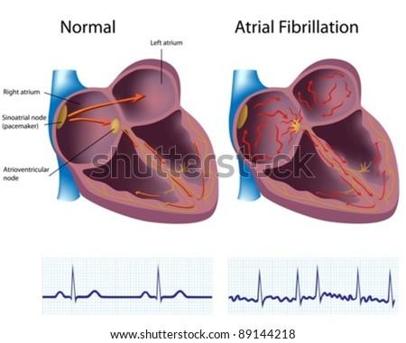 Heart disease - atrial fibrillation - stock vector