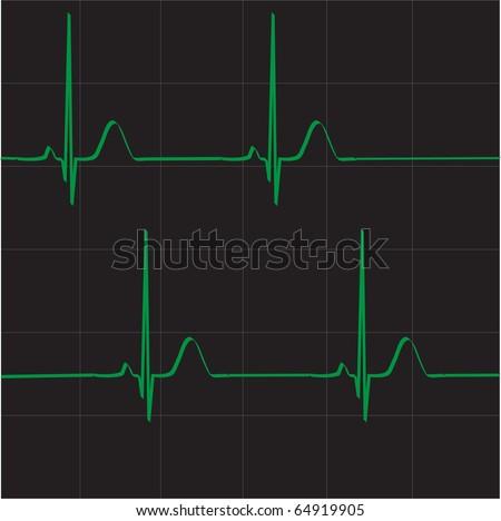 Heart electrocardiogram. Heart beat rate. Heart beats vector. - stock vector