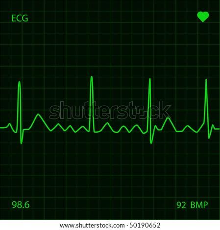 Heart Monitor - stock vector