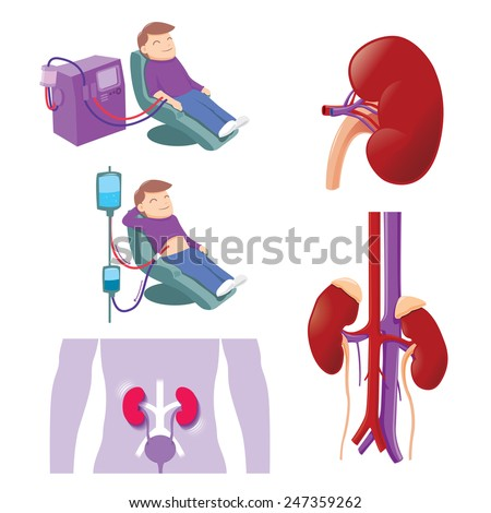 Hemodialysis and peritoneal dialysis are both used to treat kidney - vector illustration - stock vector