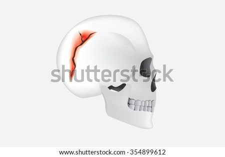 Human have any break in the cranial bone which called skull fracture. This is medical illustration. - stock vector
