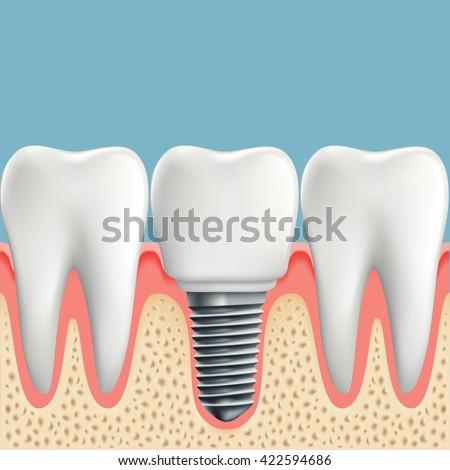 Human teeth and Dental implant. Stock vector illustration. - stock vector