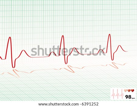 Illustrated heartbeat monitor with a readout and copy space - stock vector