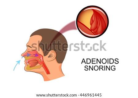 Illustration Adenoids Causes Snoring Stock-Vektorgrafik (Lizenzfrei ...