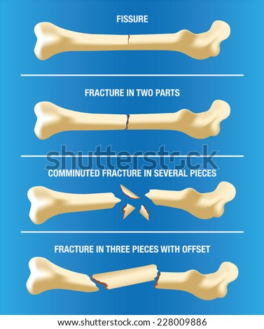 Illustration of a bone skeleton illustrating various types of fractures  - stock vector