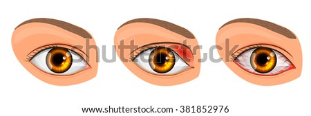 illustration of a healthy eye, the patient with conjunctivitis and styes - stock vector