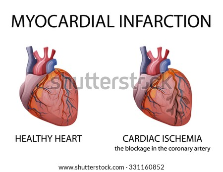 illustration of a healthy human heart, and heart attacks - stock vector