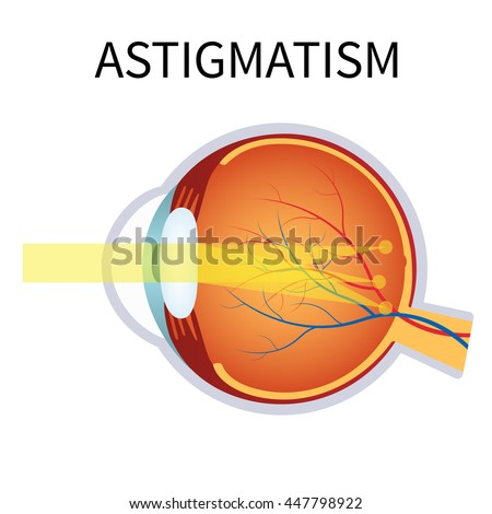 Illustration of astigmatism. Astigmatism is a blurred vision. Anatomy of the eye, cross section.
