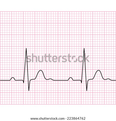 Illustration of medical electrocardiogram - ECG on chart paper, graph of heart rhythm, 2d illustration, vector, eps 8 - stock vector
