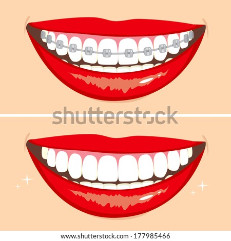 Illustration of two happy smiles showing before and after whitening teeth process - stock vector
