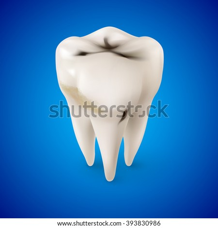 Isometric Concept of Human Tooth with Caries on Blue - stock vector