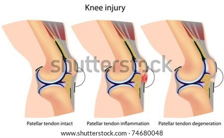 Jumper's knee anatomy - stock vector