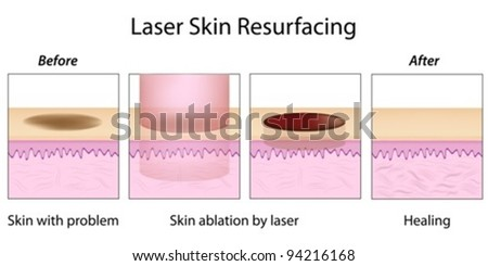 Laser Skin Resurfacing - stock vector
