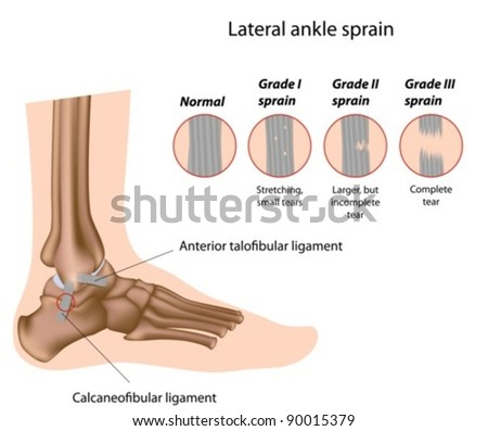 Lateral ankle sprains and grading - stock vector