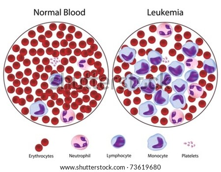 Leukemic versus normal blood, great details. - stock vector