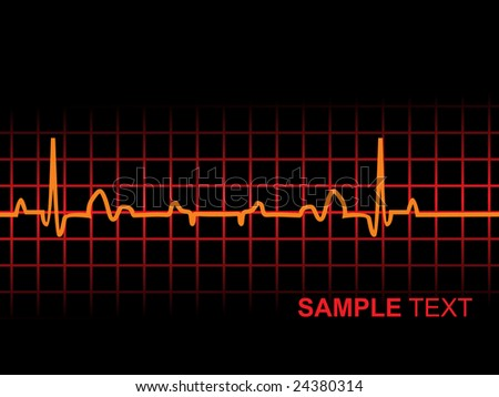 lifeline in an electrocardiogram, illustration