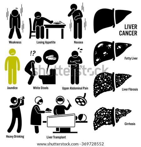 Liver Cancer Symptoms Causes Risk Factors Diagnosis Stick Figure Pictogram Icons - stock vector