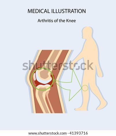 Medical Illustration Arthritis of the Knee, human anatomy, leg, bone - stock vector