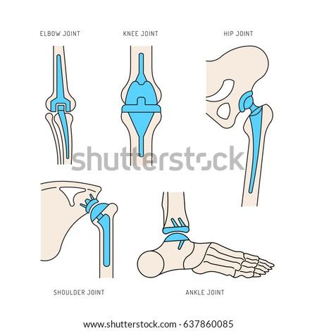 Medical Illustration Implantation Bone Joints Human Stock Vector ...