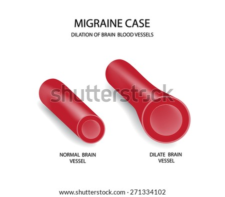 Migraine case. Brain blood vessels. - stock vector