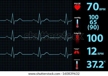 Modern Electrocardiogram Monitor Display - stock vector