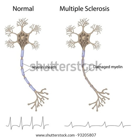 Multiple sclerosis - stock vector