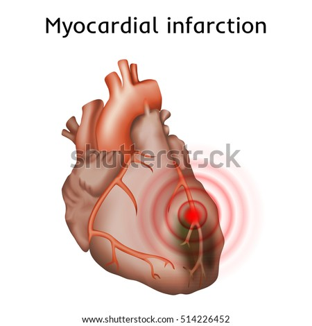 an introduction to myocardial infarction also known as heart attack