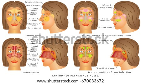 Sinus stock images royalty free images vectors shutterstock nasal sinus human anatomy sinus diagram anatomy of the nose nasal cavity ccuart Image collections