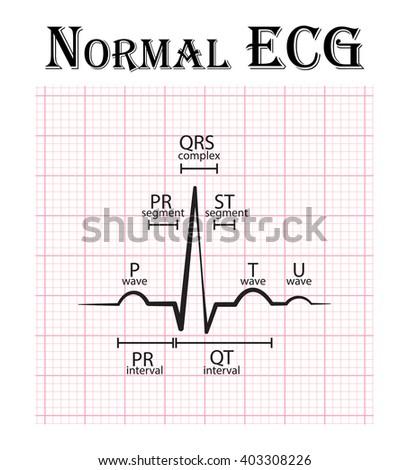 Normal ECG (Electrocardiogram) (P wave , PR segment , PR interval , QRS complex , QT interval , ST segment , T wave , U wave) - stock vector