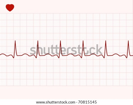 Normal electronic cardiogram. EPS 8 vector file included - stock vector